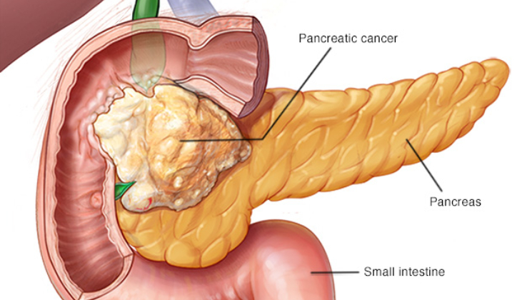 Detect pancreatic cancer in minutes with this new blood test pancreatic cancer diagram ccuart Gallery